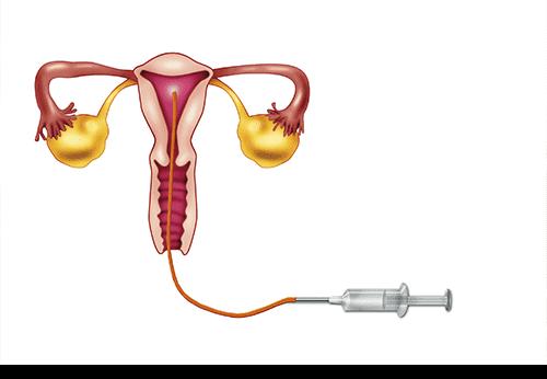 f-inseminacion